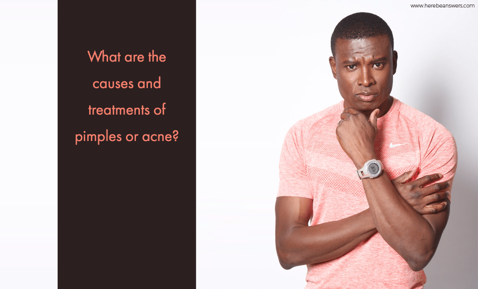 What are the causes and treatments of pimples or acne